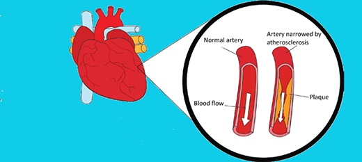 The ABC of Angioplasty Arm yourself with key facts