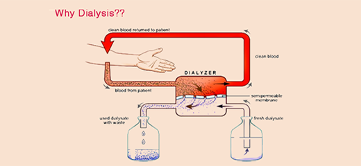 When is dialysis needed? What does dialysis do?