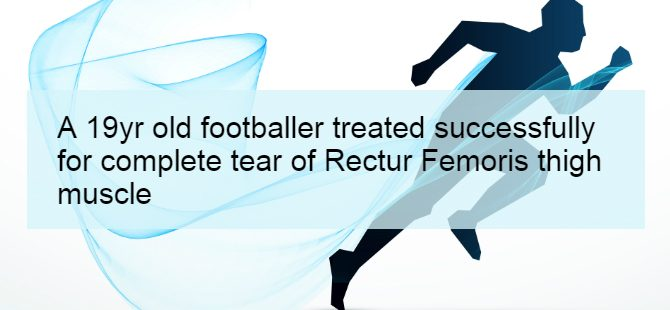 A 19yr old footballer treated successfully for complete tear of Rectur Femoris thigh muscle