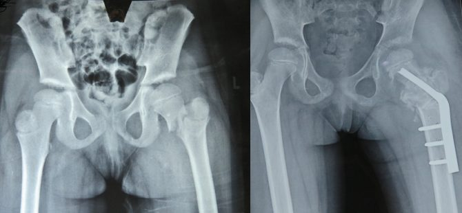 A 6yr old with Crippling Deformity treated successfully with segmental transport of bone