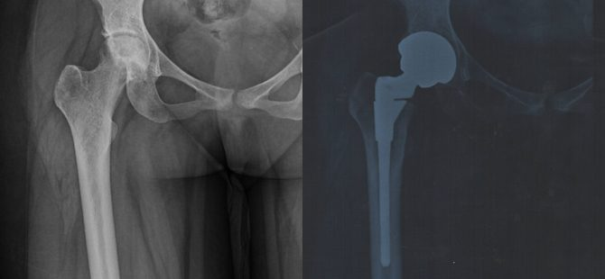 Successful Hip replacement in a patient with sickle cell Anemia