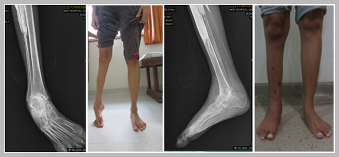 Severe Deformity of Foot and Ankle corrected successfully with Ílizarov's Ring external fixator