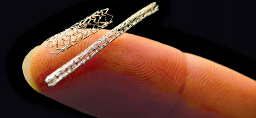 Stents the Heroes of Angioplasty discover the powers of third generation stents