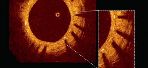 OCT – The latest imaging technology taking Angioplasty to a new level