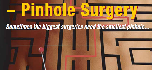 Pinhole Surgery – A Revolution in Medicine