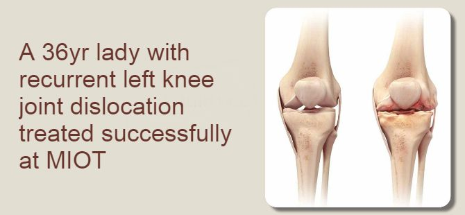 A 36yr lady with recurrent left knee joint dislocation treated successfully at MIOT