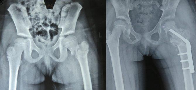 A 6yr old with Crippling Deformity treated successfully with segmental transport of bone